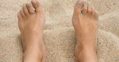 Deformacje stóp – palce młotowate