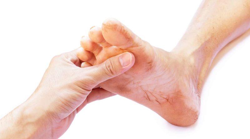Jak radzić sobie z odciskami na stopach?