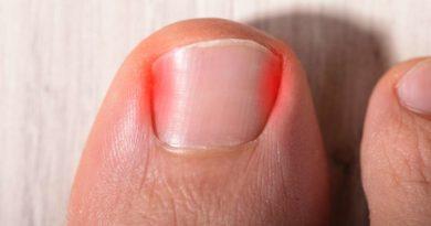 Wrastający paznokieć – przyczyny i skuteczne sposoby walki z tym problemem.