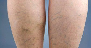 Jak zapobiegać żylakom nóg?