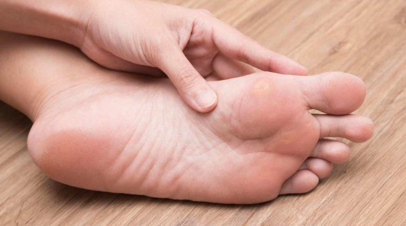 Odciski na stopach – kto jest najbardziej narażony na ich powstawanie?