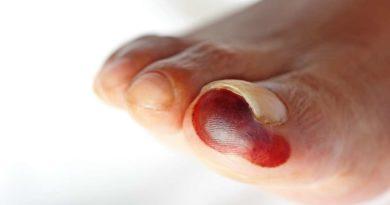 Stopa cukrzycowa – przyczyny, leczenie.