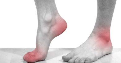 Odparzenia stóp – jak dochodzi do tego schorzenia