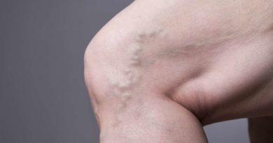 Żylaki – przyczyny, jak zapobiegać i leczyć.